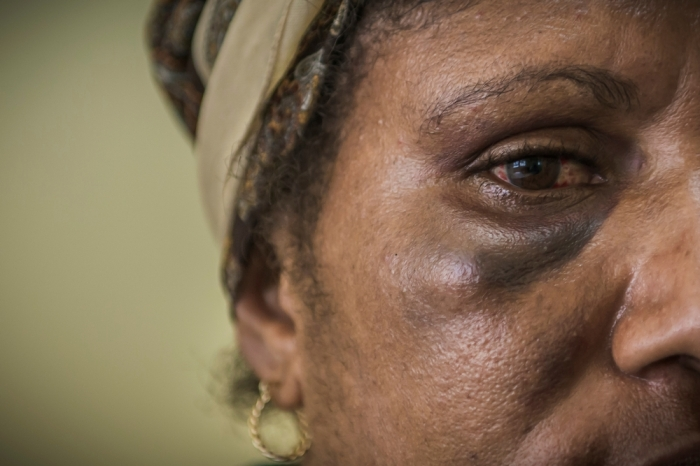 Women with black eye following inter-partners violence